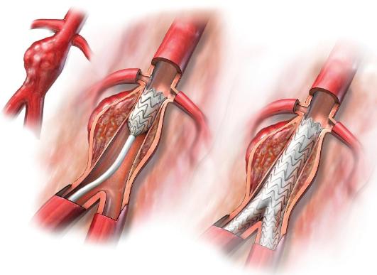 foto-de-protese-vascular-em-aneurisma-da-aorta-abdominal