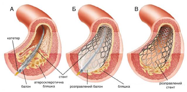 Основні кроки у процедурі коронарного стентування: А) позиціонування балону зі стентом в ураженому місці коронарної артерії; Б) роздування балону і розправлення стента; В) вилучення балону і катетера з судини. Розправлений стент підтримує стінку артерії і запобігає її повторному звуженню.
