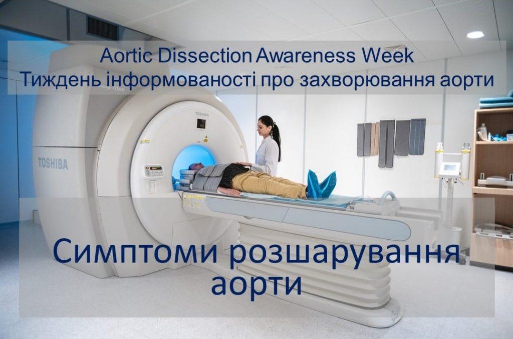 симптоми розрашування аорти