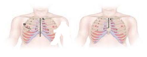 стернотомія з розтином грудної клітки