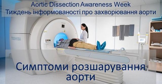 розшарування аорти